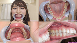 [Tooth Fetish] I observed Monami Takarada's teeth!