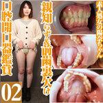 素人処女の陽奈の親知らず&前歯の裏が欠けた口腔を開口器鑑賞