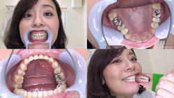 【歯フェチ】牧村彩香さんの歯を観察しました!