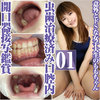 Surprisingly de S female college student also has a caries treated mouth opener close-up appreciation